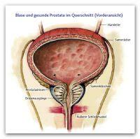 1 Gesunde Prostata